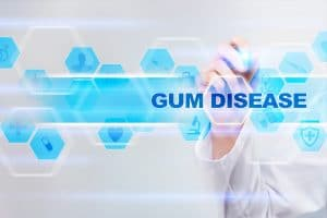 how to know you have gum disease